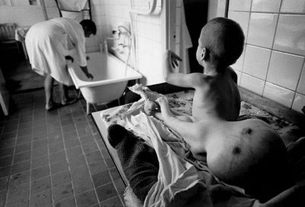 Chernobyl..1 million dead so far..Fukushima could be worse. (2/5)
