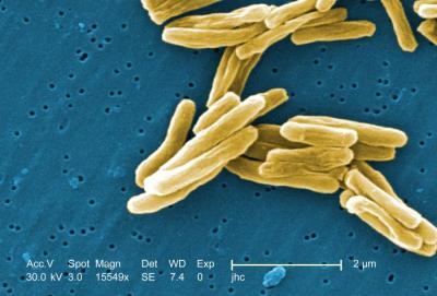 M. tuberculosis-CDC